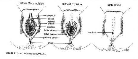 infibulación